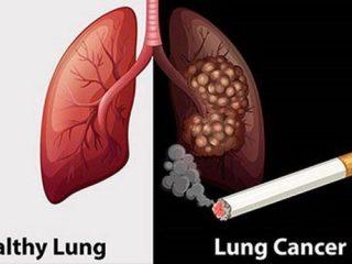 Tác hại của thuốc lá đối với phổi như thế nào?