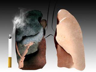 Vì sao hút thuốc lá lại gây ung thư phổi?