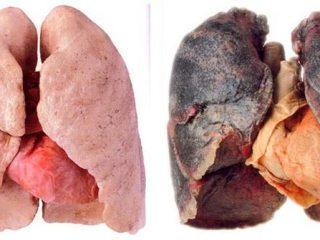 Phổi của người hút thuốc lá khác gì so với người bình thường?