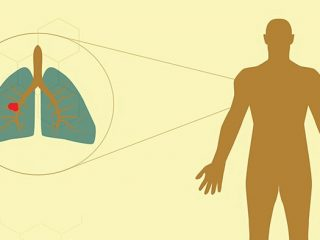 Các giai đoạn của bệnh ung thư phổi