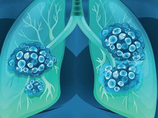 Có mấy loại Ung thư phổi? Loại nào thường gặp nhất hiện nay?