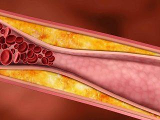 Tại sao hút thuốc lá lại làm tăng huyết áp?