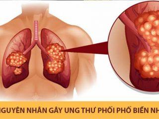 Những nguyên nhân gây ung thư phổi phổ biến nhất