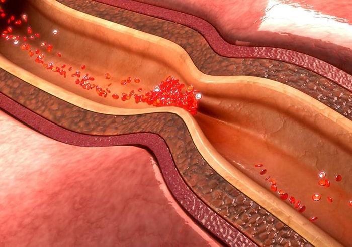 Bệnh mạch vành có khá nhiều tên gọi khác nhau