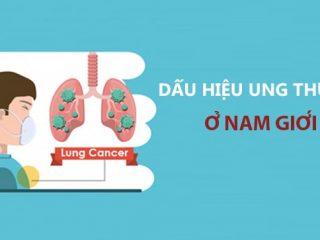Triệu chứng ung thư phổi ở nam giới