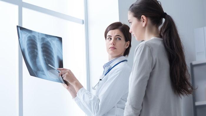 Thống kê tình trạng ung thư phổi ở phụ nữ