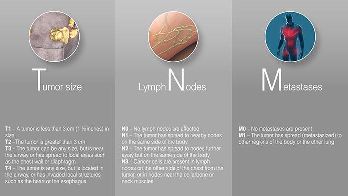 Hệ thống dàn TNM xác định giai đoạn ung thư phổi tế bào nhỏ