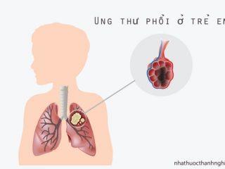 Ung thư phổi ở trẻ em - Dấu hiệu, cách phòng và điều trị bệnh