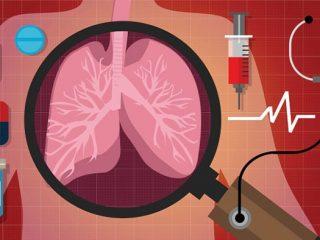 Ung thư phổi sống được mấy năm? Làm sao để kéo dài sự sống?